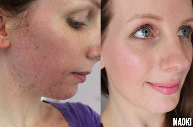 hormonale acne before & after